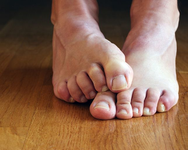 Pictures Of Stinky Feet photo 13