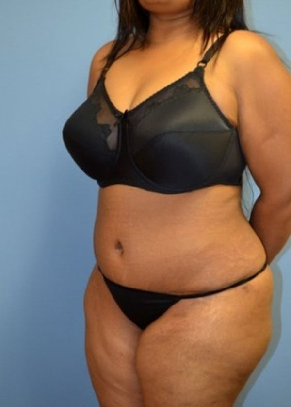 Bbw Picture Gallery photo 9