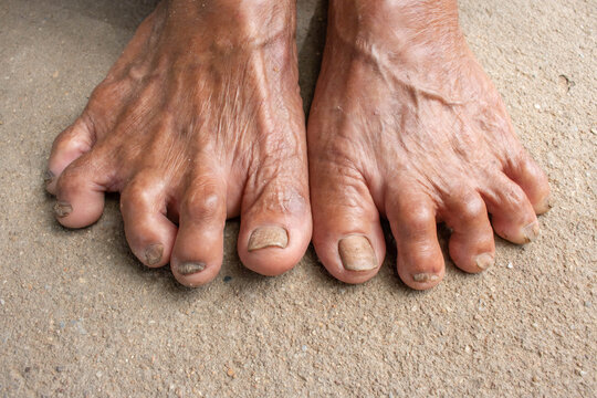 Pictures Of Stinky Feet photo 18